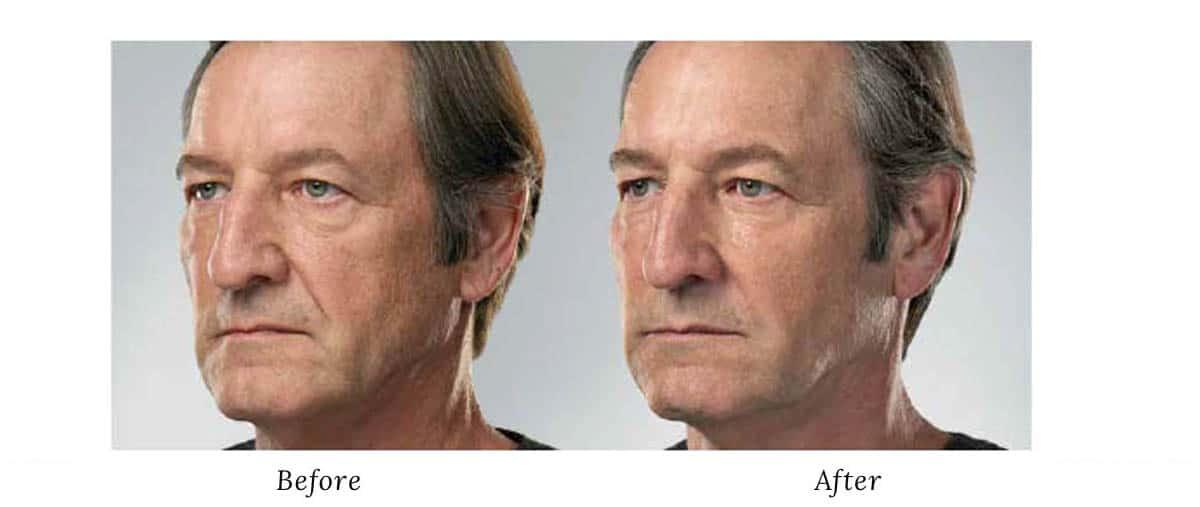 Men cosmetic procedures