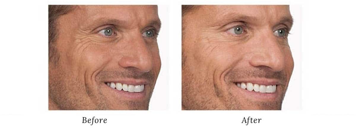 Men face surgery