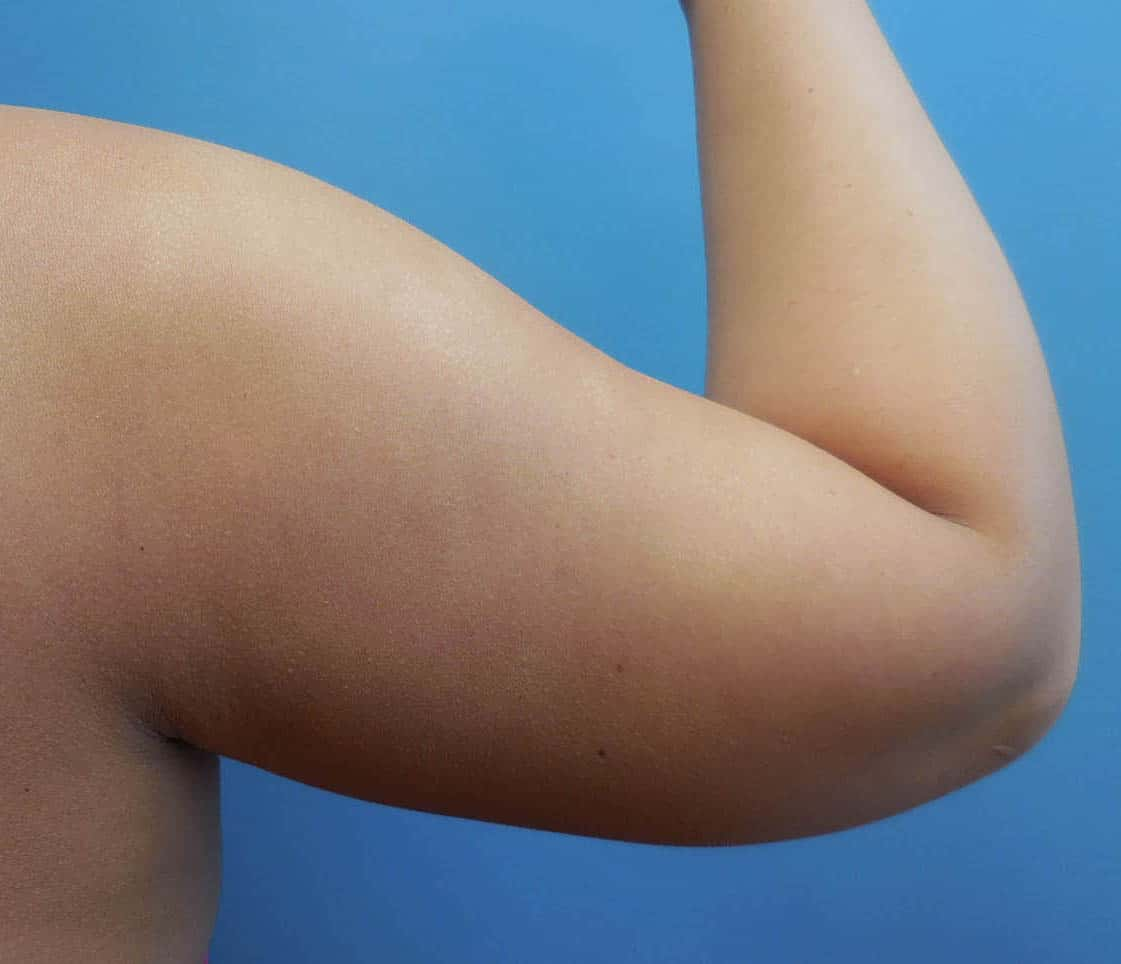 Upper arm fat removal