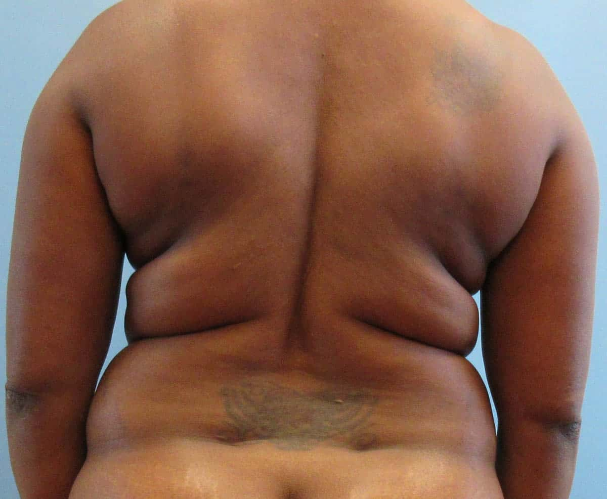 back bulge