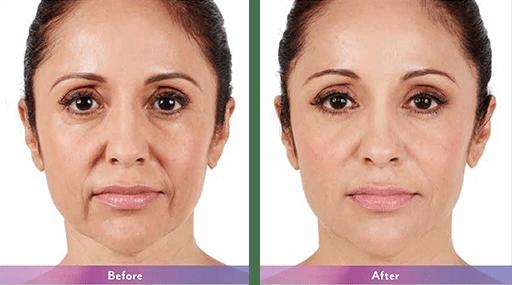 Facial Filler