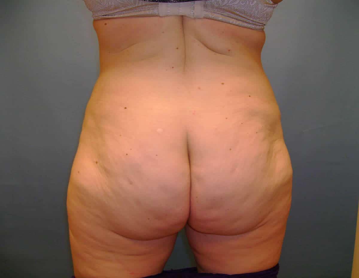 back bulge removal