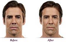 Filler Implants Men